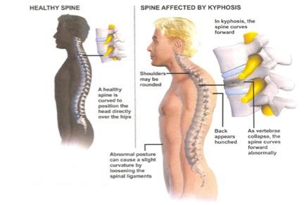 HyperKyphosis